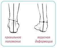 8aa5fb937 Правильное положение ног и деформация коленных суставов при варусной  деформации: