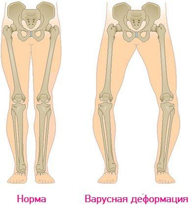 f9e9becb2 Купить детскую ортопедическую обувь ORTHOBOOM с бесплатной доставкой ...